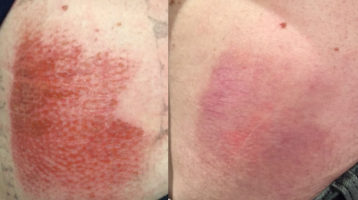 Back abrasion before and after laser treatment and chiropractic