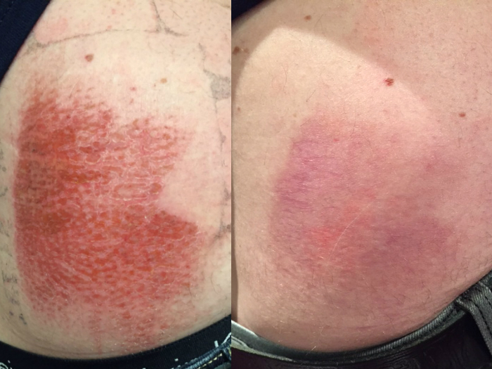 Back Abrasion Heals Within Weeks With Chiropractic and Laser
